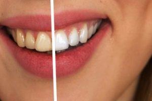 5 причин желтизны зубов